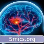 سکته مغزی و زود تشخیص دادن آن ، چطور ؟