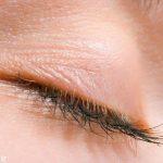 پرش پلک چشم