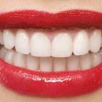روشهای پیشگیری از پوسیدگی دندان