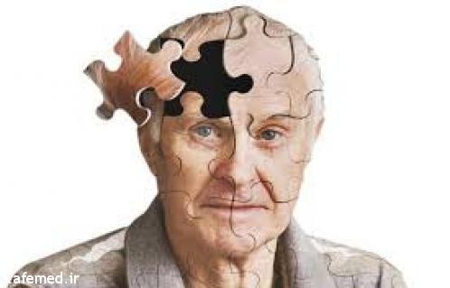 ۳۰ شهریور روز جهانی آلزایمر