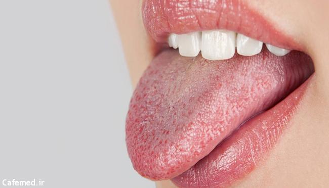 ۵ راهکار ازبین بردن بار زبان