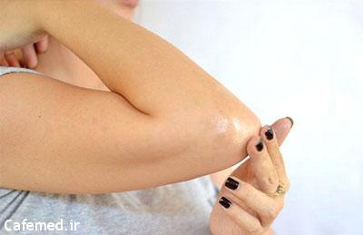درمان خانگی پینهی آرنج