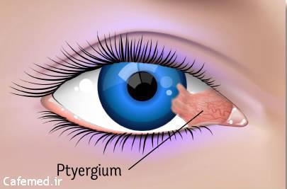 علائم و درمان ناخنک چشم